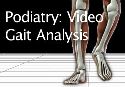 Podiatry: Video Gait Analysis